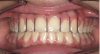 Figure 2   A balanced appearance of the anterior teeth is represented by a
