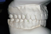 "Figure 7D  This case is an example of the importance of evaluating the bite with the joints seated in a stable position. Orthodontic treatment was rendered to correct a ""deep overbite"" and trauma to the maxillary incisors. D) Models mounted in CR after retreatment."